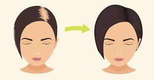 coke rinse hair baking soda stops hair loss promotes hair growth in no time