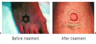 tacoma laser clinic laser tattoo removal