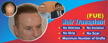 fue hair transplant clinic lahore pakistan dr ahmad