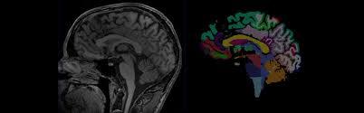 Axial Mri Brain Anatomy Sectional Anatomy Org Radiologic Anatomy Of Ct Mri