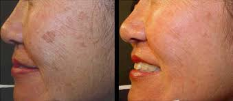 intense pulsed light review photo ipl boston light therapy dr brooke seckel