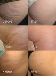 red light therapy cellulite cellulite treatments bay harbour med spa our skin and laser hair