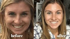 vital proteins collagen vital proteins review before and after picture too sarah fit