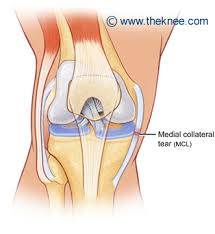 Anatomy Of Knee Injuries What Is An Mcl Injury The Knee