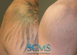 tattoo removal shoulder laser tattoo removal gallery before and after laser tattoo removal