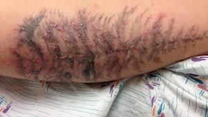 infected tattoo outbreak traced to ink cbs news
