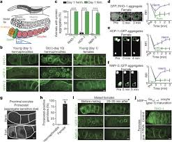 a lysosomal switch triggers proteostasis renewal in the immortal c