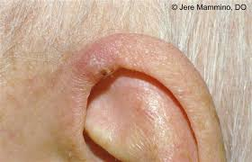 cancer of the ear cartilage chondrodermatitis nodularis helicis american osteopathic college
