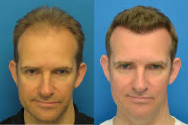 best hairtransplant in the world famous men who have had a fut hair transplant in the uk fue hair