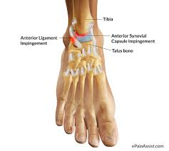 Talus Ligaments What Is Ankle Impingement Symptoms Causes Treatment Recovery