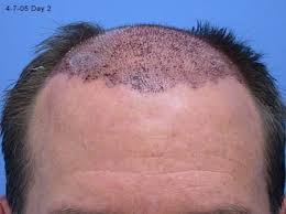 1 inch of hair biscuit day 1 after hair transplant at h w