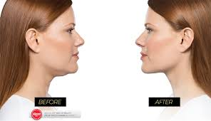 center for cosmetic u0026 laser surgery naperville cosmetic surgeon