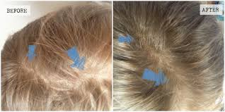 what helps scalp hair growth u2013 modern hairstyles in the us photo blog