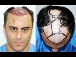 hair uk best hair transplant uk patient at medispa jaipur delhi india by