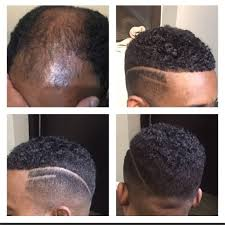 men hair weave pictures man weaves instill new confidence in men who are losing their hair