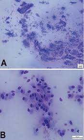 cytological endometritis at artificial insemination in dairy cows