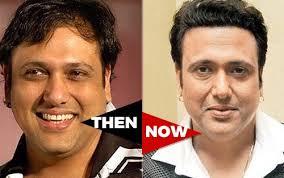 ranbir kapoor hair transplant the hair loss tales of bollywood