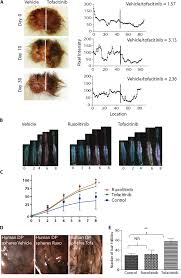 Stem Cells Hair Loss Pharmacologic Inhibition Of Jak Stat Signaling Promotes Hair