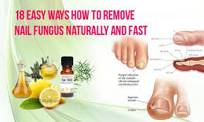 18 easy ways how to remove nail fungus naturally and fast