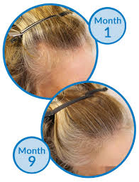 female balding at temples hairstyles thinning hair at temples after using minoxidil for 15 years