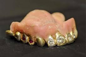 diamond stud in tooth denture crown jewels gold diamond and ruby studded false teeth