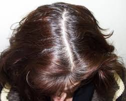 womans hair thinning on sides female hair loss on sides of head trendy hairstyles in the usa