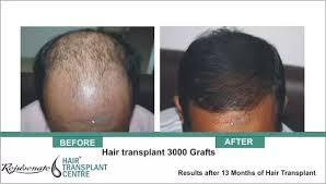 hair transplant america where did salman khan get his hair transplant quora