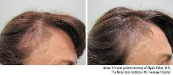 viviscal before and after hair length afro beforeafter clinical trial results day 0 day 90 with viviscal