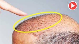 eat these 2 foods to regrow hair in 19 days hair loss treatment