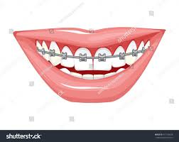 dentist orthodontist vector illustration braces on stock vector