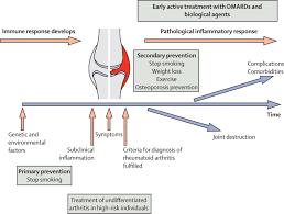 rheumatoid arthritis the lancet