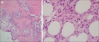 lipoatrophic panniculitiscase report and review of the literature