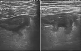 sigmoid diverticulitis us findings critical ultrasound journal