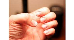 these harmful side effects of acetone based nail polish removers
