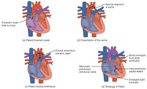 Gross Anatomy Of The Human Heart Heart Anatomy Anatomy And Physiology Ii