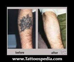 tca peel tattoo removal before and after
