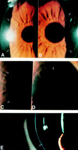 bilateral anterior stromal ring opacity of the cornea british
