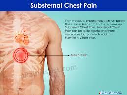 substernal chest causes symptoms treatment diagnosis