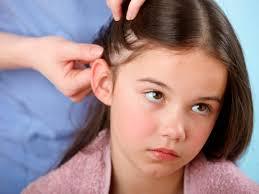 Challenge Kid Gets Herpes 20 Ways To Get Rid Of Lice Health