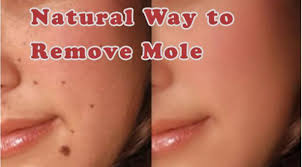 how much does it cost to remove a mole