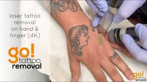laser tattoo removal on hand and finger 4k youtube