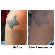 laser tattoo removal by natalie abbott ink affliction laser