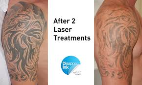 tribal bicep 2nd treatment disappear ink removal