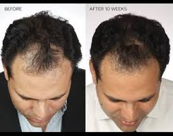 rogaine for women success stories rogaine foam the ultimate guide to using it to regrow hair
