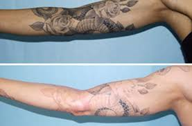 adieu tattoo removal u2013 madison u0026 milwaukee u0027s picosure tattoo