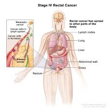 Human Body Picture Rectal Cancer Treatment Pdq U2014patient Version National Cancer