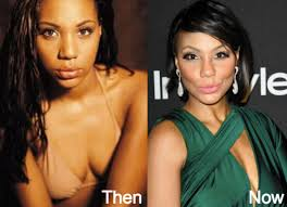 tamar braxton nose job before after tamar braxton plastic surgery before and after photos