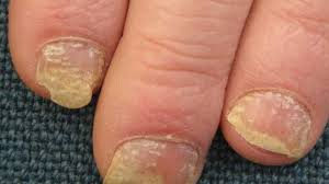 nail psoriasis pictures symptoms and treatments