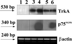 suppression of telomerase reexpression of kai1 and abrogation of