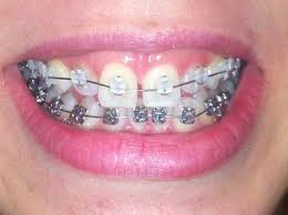 goody bands for teeth forsooth gap tooth getting braces at 23 other insanity